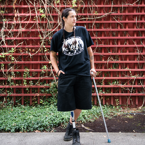 An Indigenous Two-Spirit person with a prosthetic leg standing in front of a vine-covered red wall.
